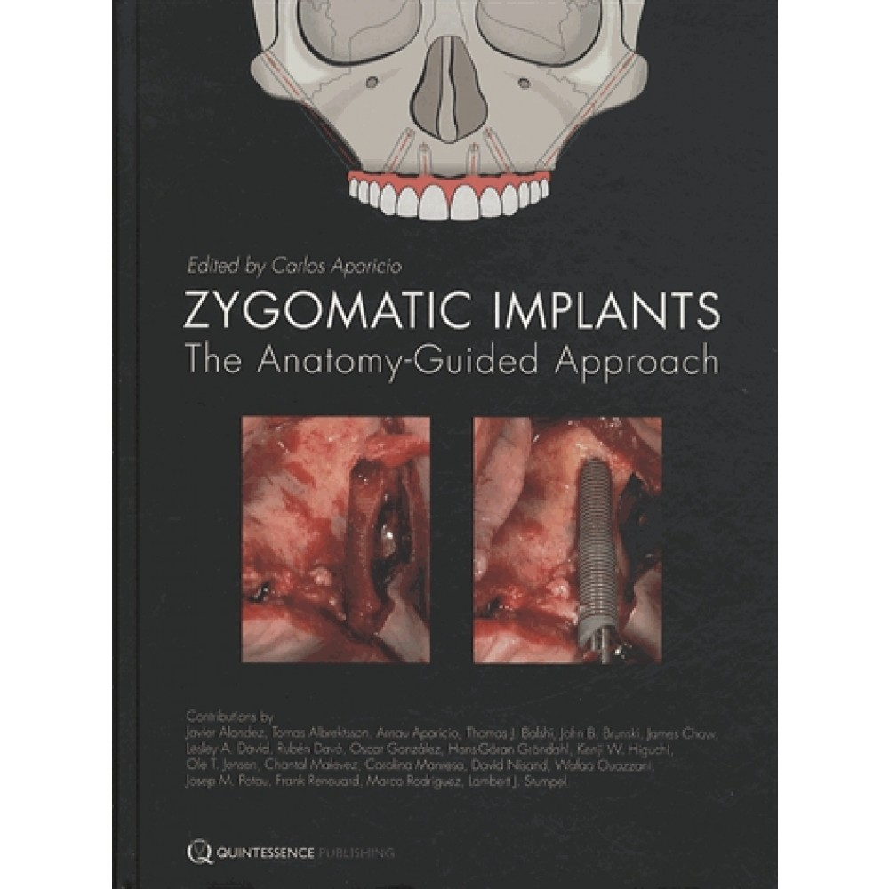 Zygomatic Implants The Anatomy Guided Approach Cultura