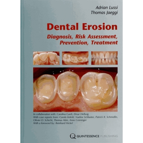 Dental Erosion - Diagnosis, Risk Assessment, Prevention, Treatment