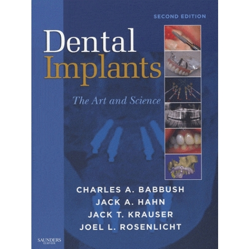 Dental Implants - The Art and Science